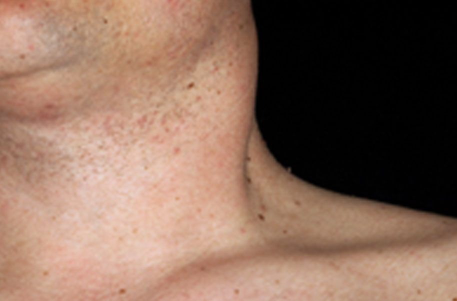 hpv on neck pictures