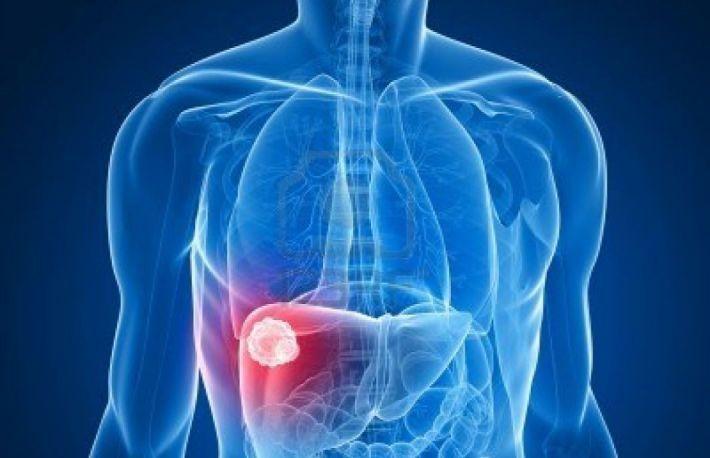 cancer de ficat stadiul 4