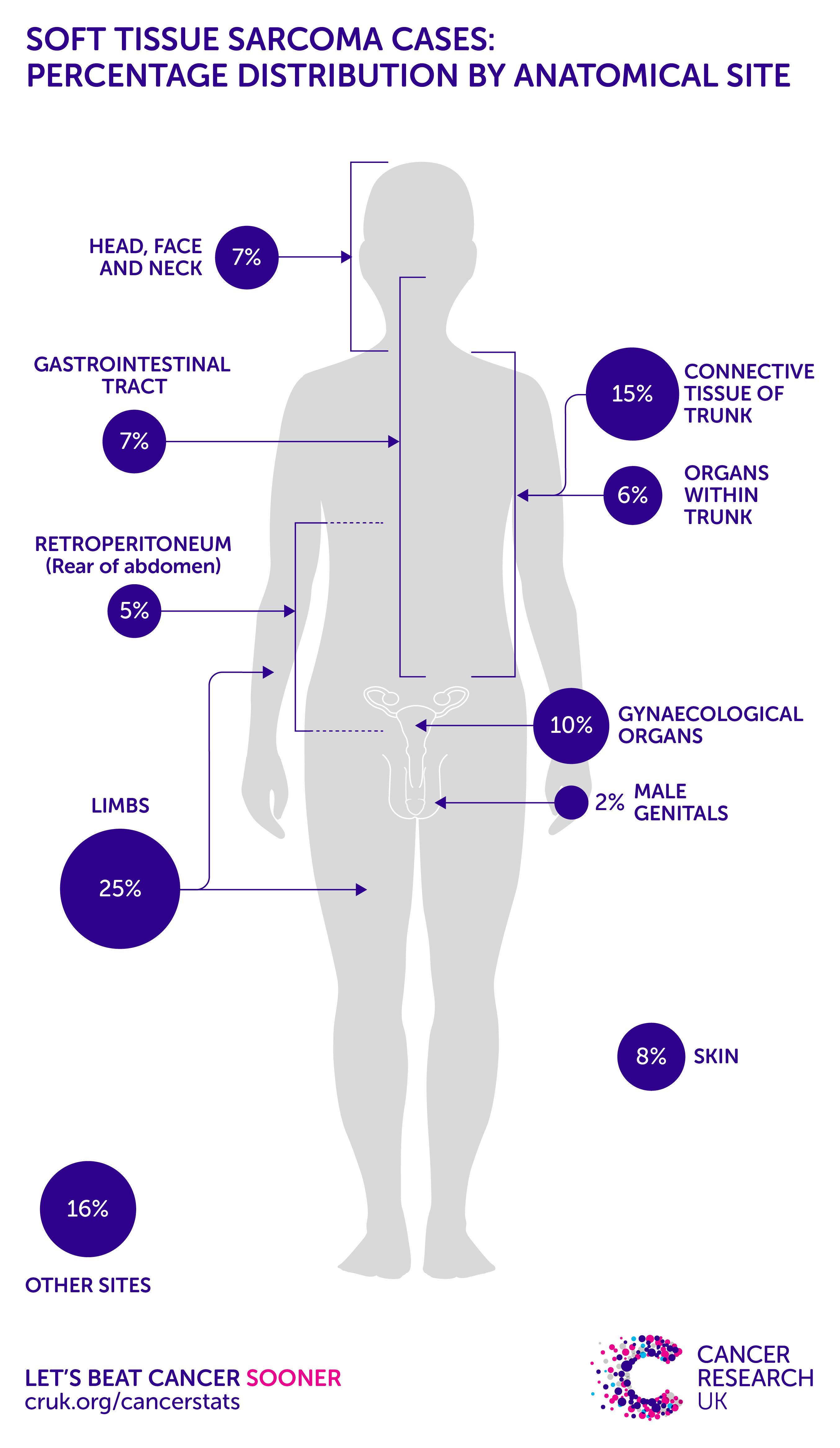 Sarcoma cancer po polsku, Soft Tissue Sarcomas - FAQ with Dr. Adam Levin giardia parazit