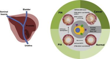 Tumorile pulmonare neuroendocrine(TNE) | Centru Oncologie Severin