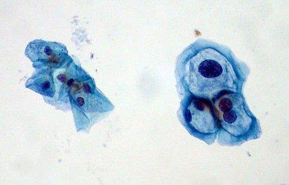 virus papiloma humano positivo citologia)