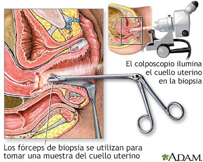 virus del papiloma biopsia