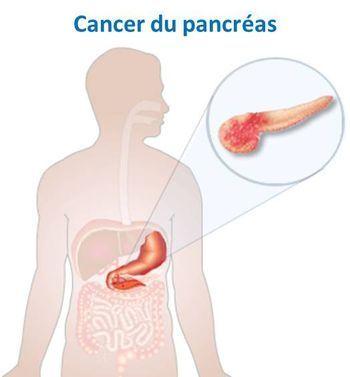cancer pancreas medicament