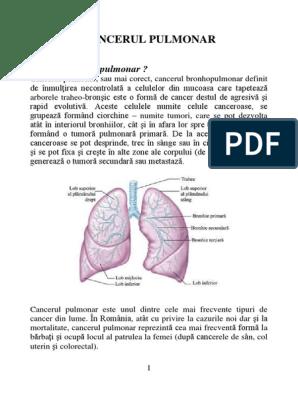 Lobectomia – operatia de indepartare a unui singur lob pulmonar
