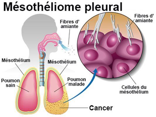 Cancer Pancreas Vindecare