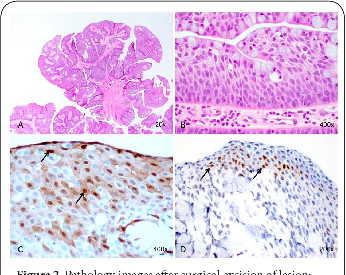 conjunctival exophytic papilloma
