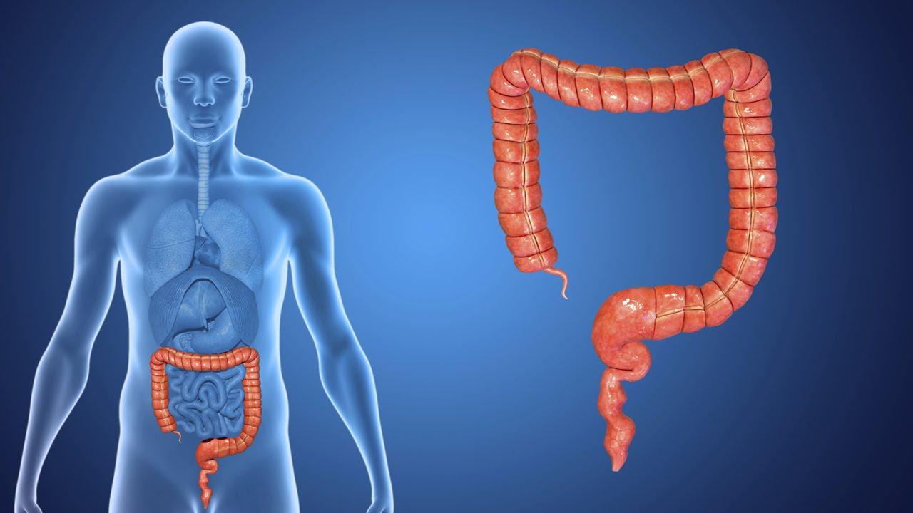 cancer en intestinal)