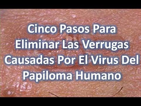 virus papiloma humano tratamiento casero)