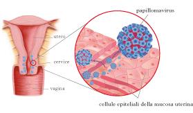 papillomavirus trasmissione hpv causes cancer