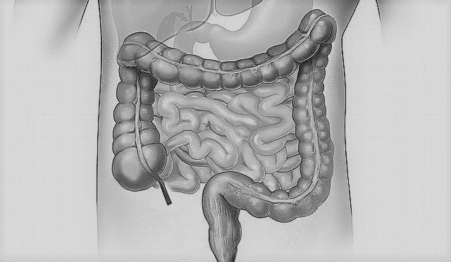 dezintoxicare intestin