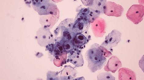 Infecţia cu HPV (human papilloma virus) la bărbaţi   Oana Clatici   asspub.ro