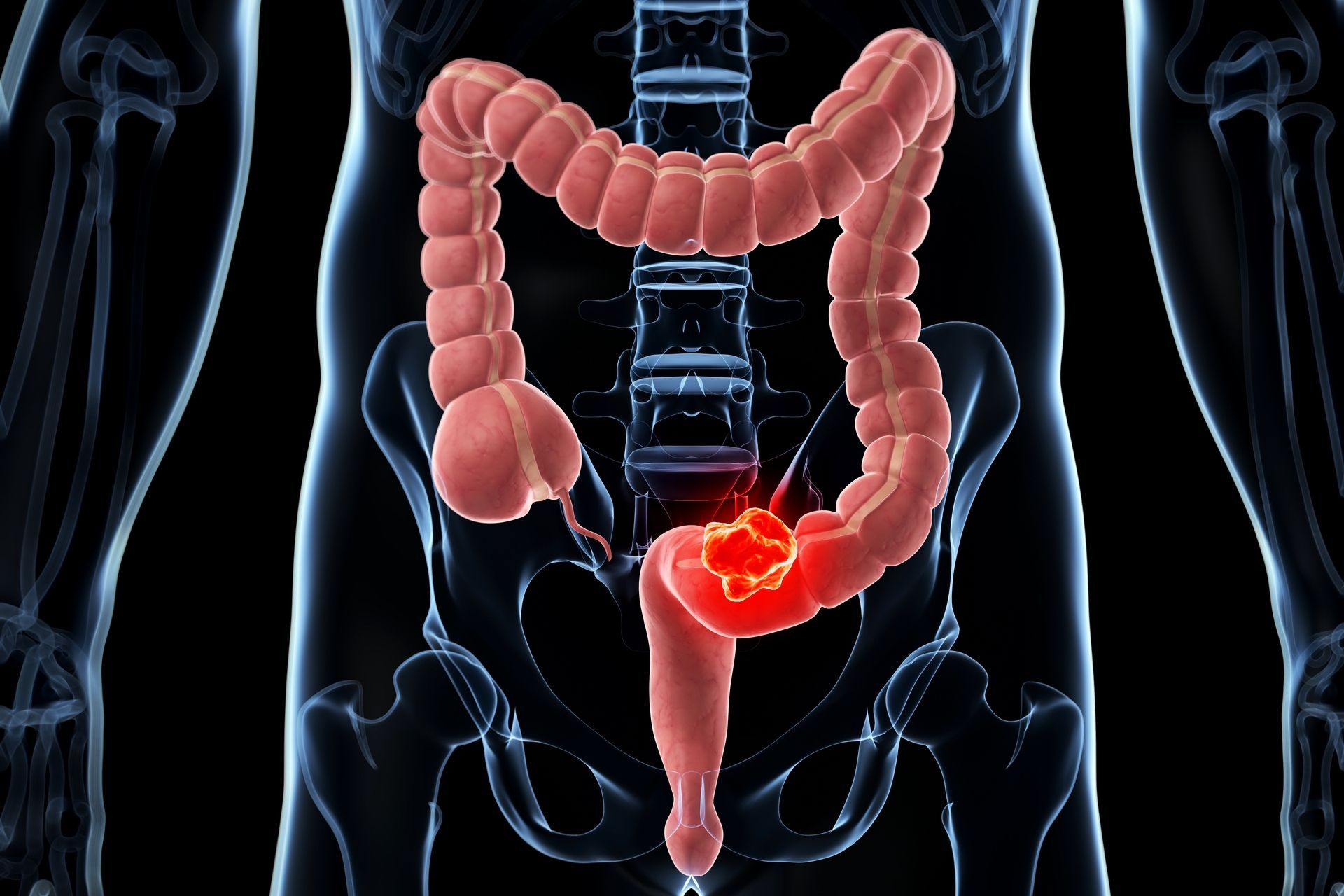 cancer colorectal homme symptome)