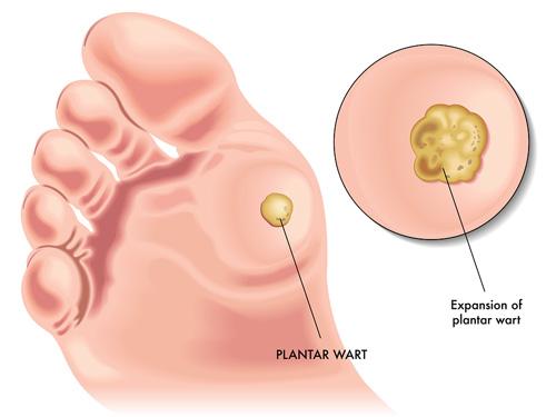 cancerul triplu negativ metastaze cancer ovarian stage 1