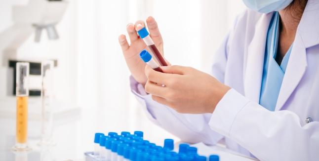 Antidoturi naturale pentru metalele grele din corp
