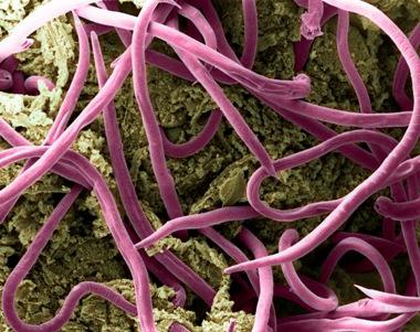 enterobius vermicularis treatment nhs)