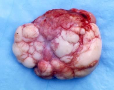 benign cancer surgery