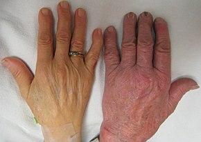Anemia (scăderea hemoglobinei)