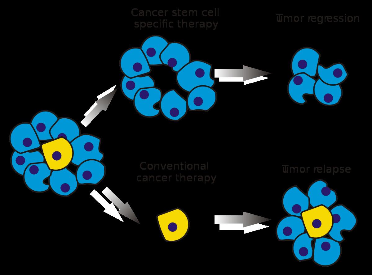 que es leukemia cancer