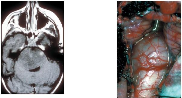 cancer cerebral fase 3