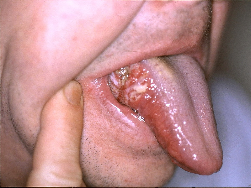 hpv neck cancer treatment)