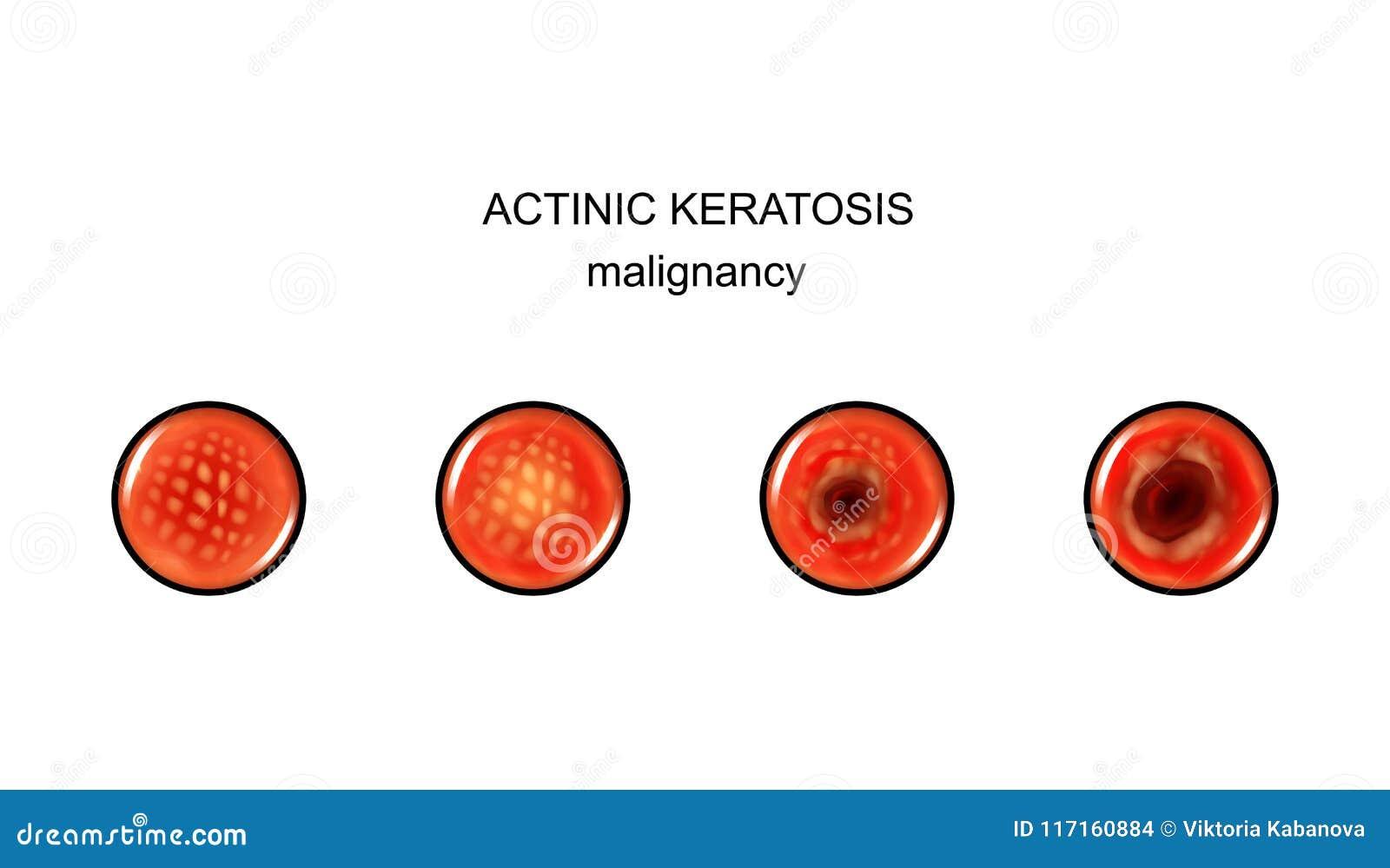 cancer cerebral imagenes human papillomavirus infection organism