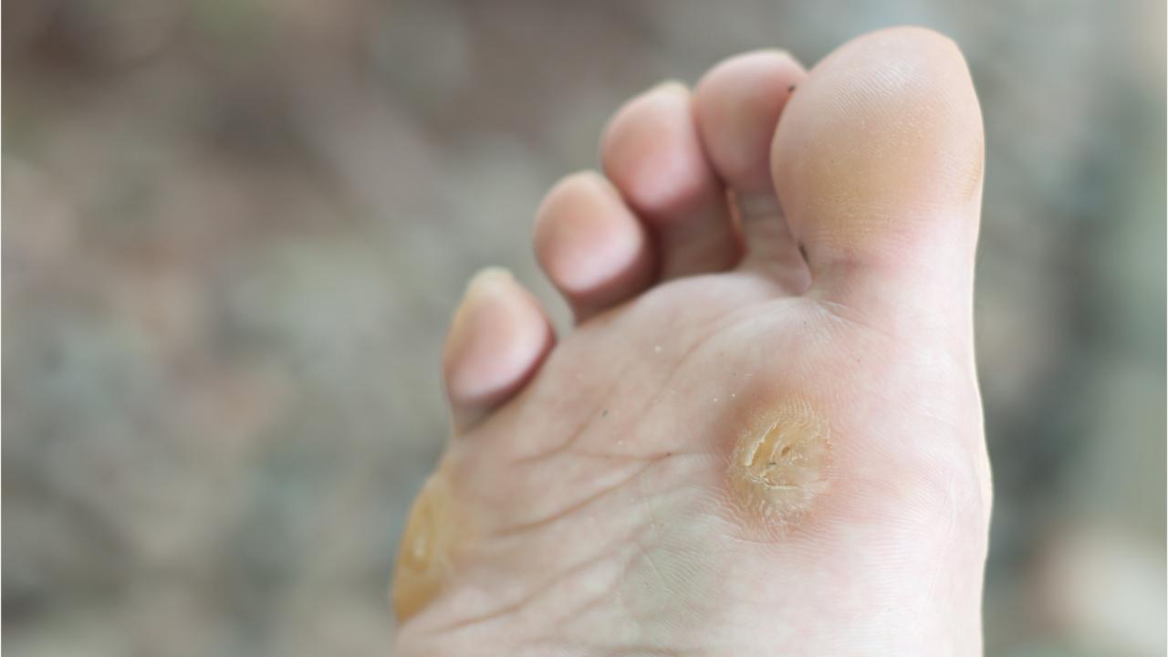 wart on foot growing)