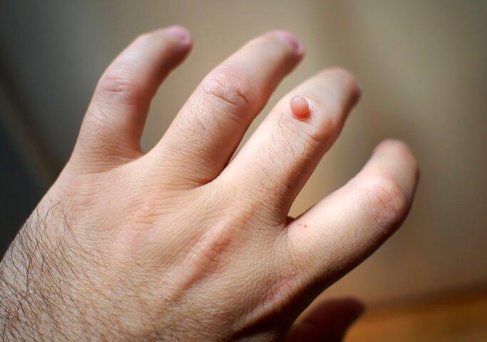 papilloma virus malattie della pelle)