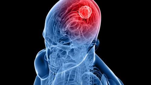 cancer malign pe creier