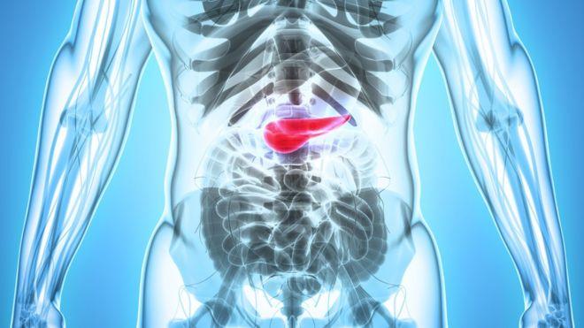 vestibular papillomatosis patient handout cervical cancer endometriosis