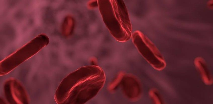 Leucemia la copii: cauze, simptome, tratament