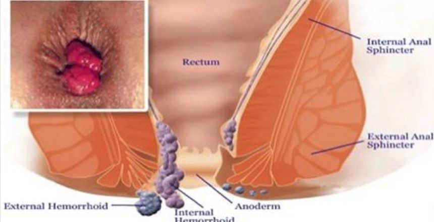 cancer colorectal hemorroides)
