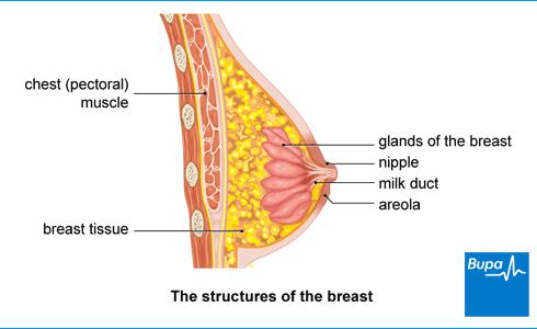 benign cancer of breast)