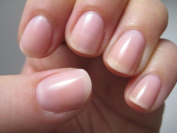 Cancerul de plamani se vede pe unghie   asspub.ro