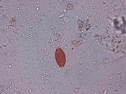 squamous papilloma with dysplasia
