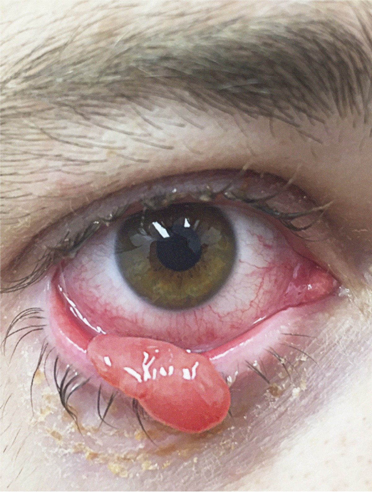eyelid papilloma removal cpt)