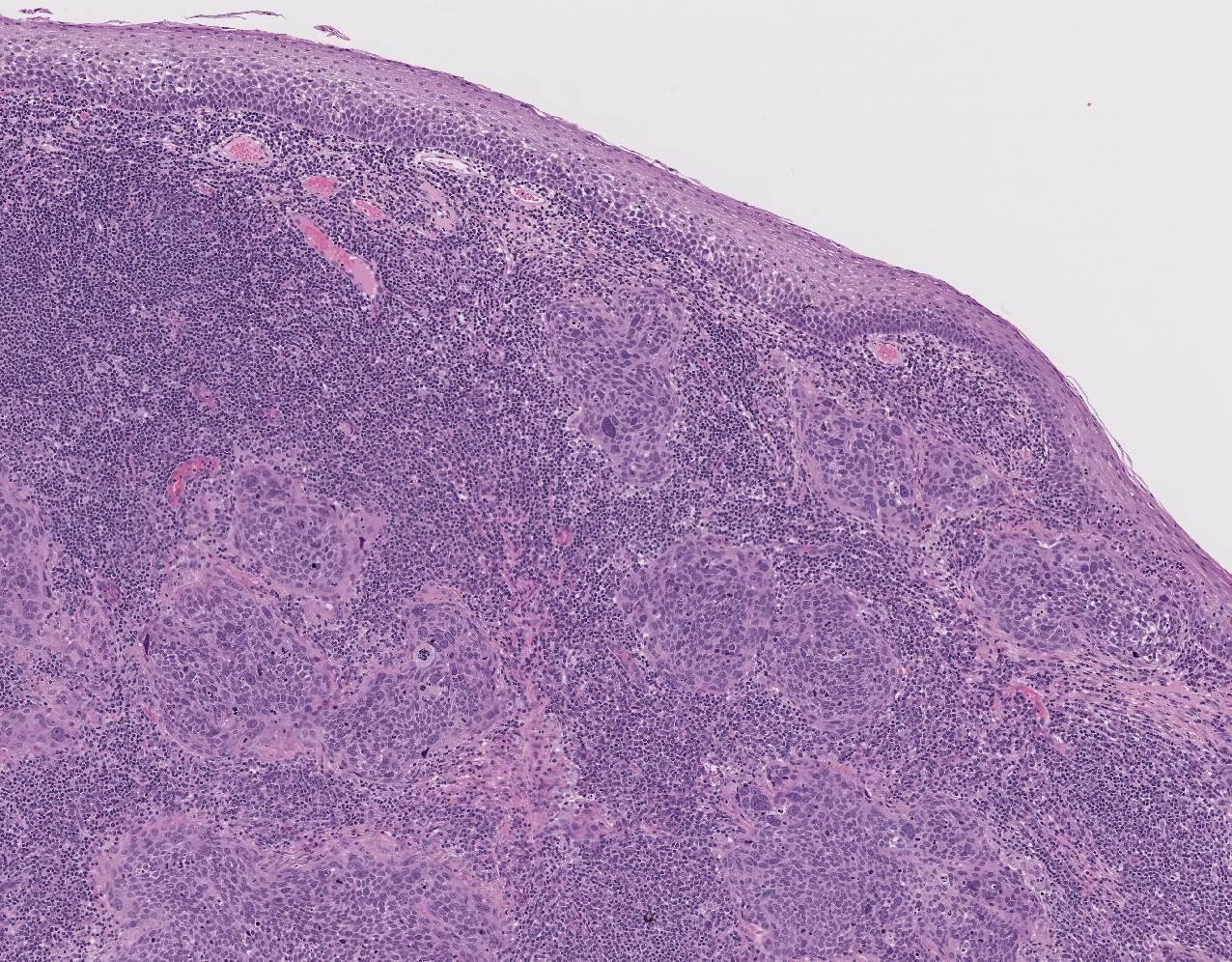 papillomavirus p16 traitement)