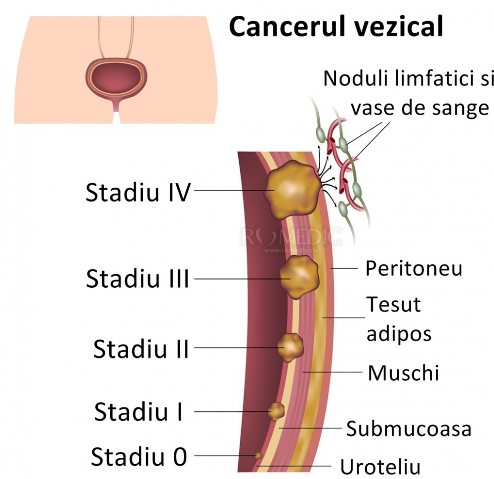 cancer la san stadiul 3)