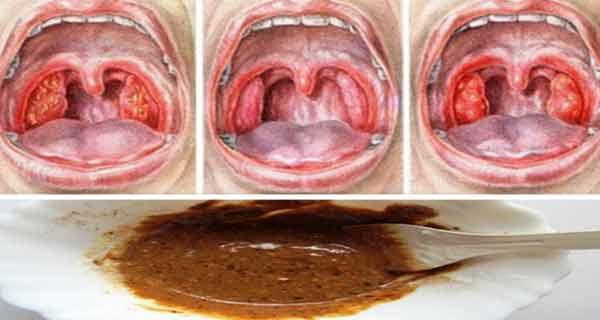 tratament pt durerea de gat parazitii apa in vin