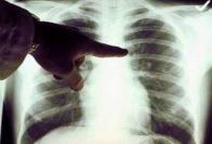 Cauzele cancerului pulmonar