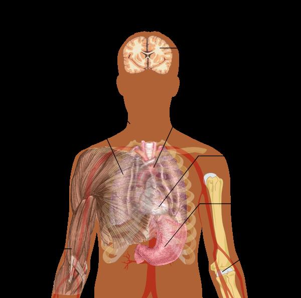 cancer pulmonar la copii)