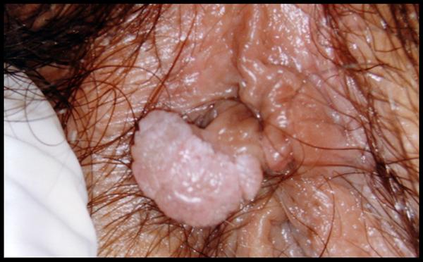 papilloma squamoso contagio