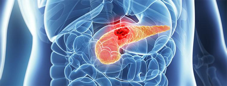 Cancer de pancreas: factori de risc, simptome şi analize necesare pentru diagnostic   asspub.ro