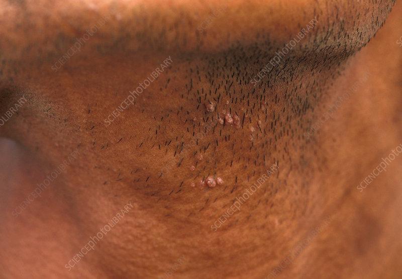 hpv wart neck papiloma genital cancer