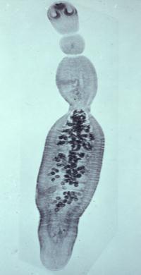 paraziti colon