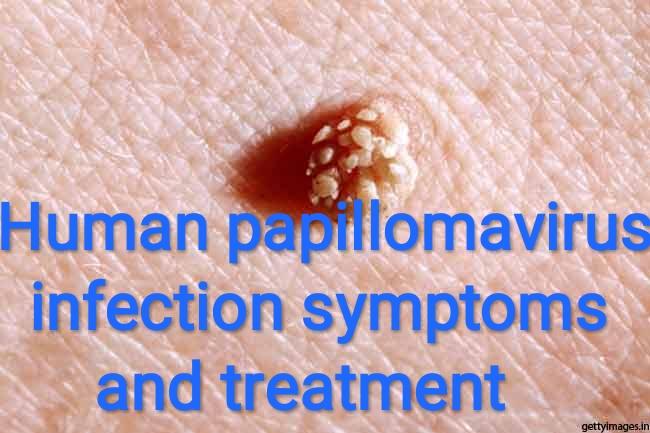 papilloma virus e cure)