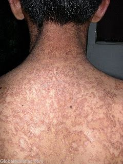 confluent and reticulated papillomatosis derm nz
