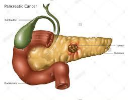 Ce Este Cancerul Pancreatic, Boala De Care A Murit Ionela Prodan | Libertatea