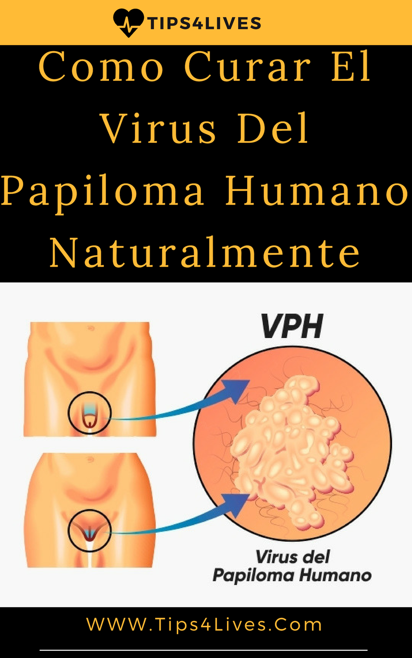 manifestaciones del virus del papiloma humano en mujeres