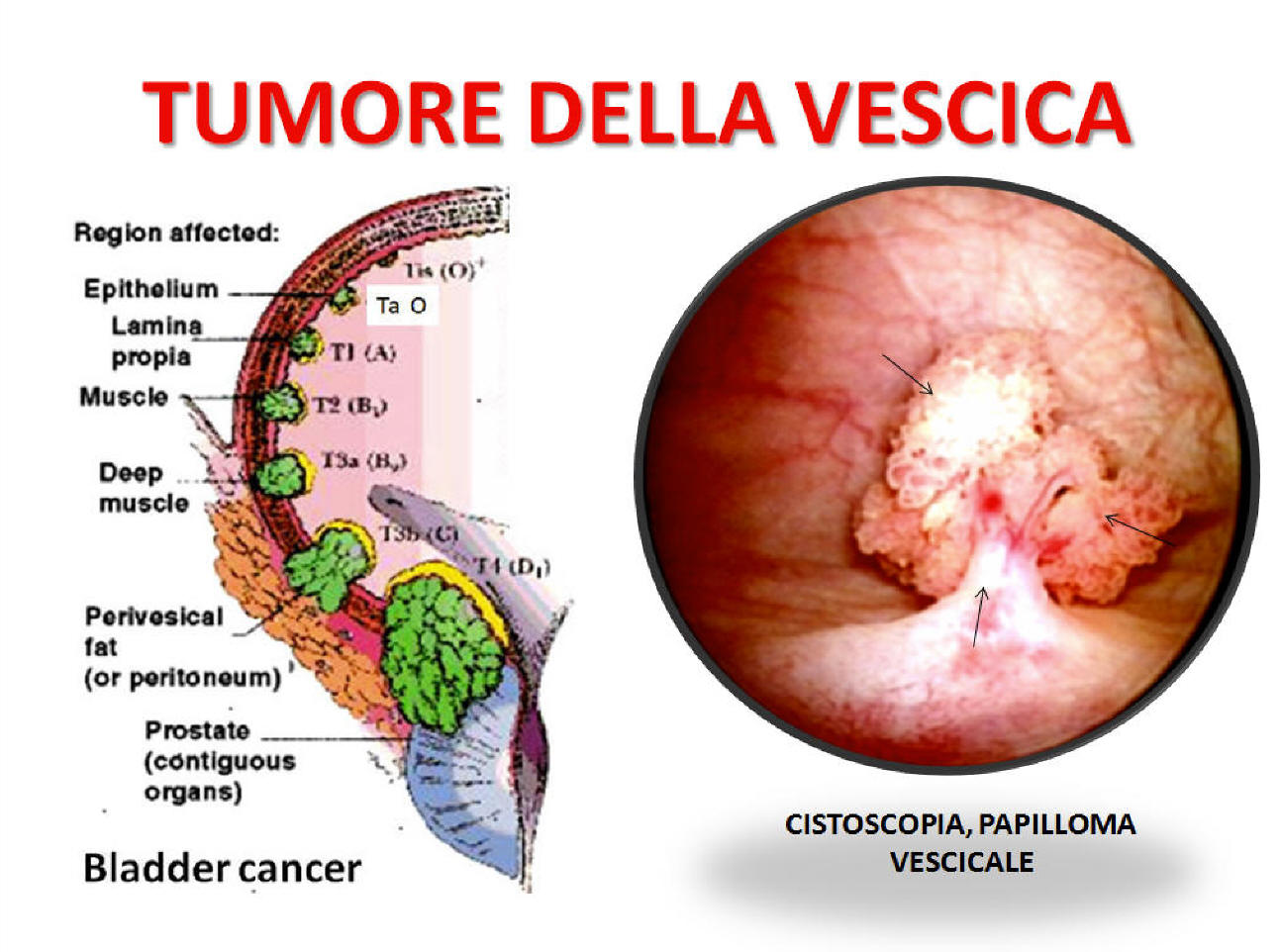 papilloma virus vescica sintomi