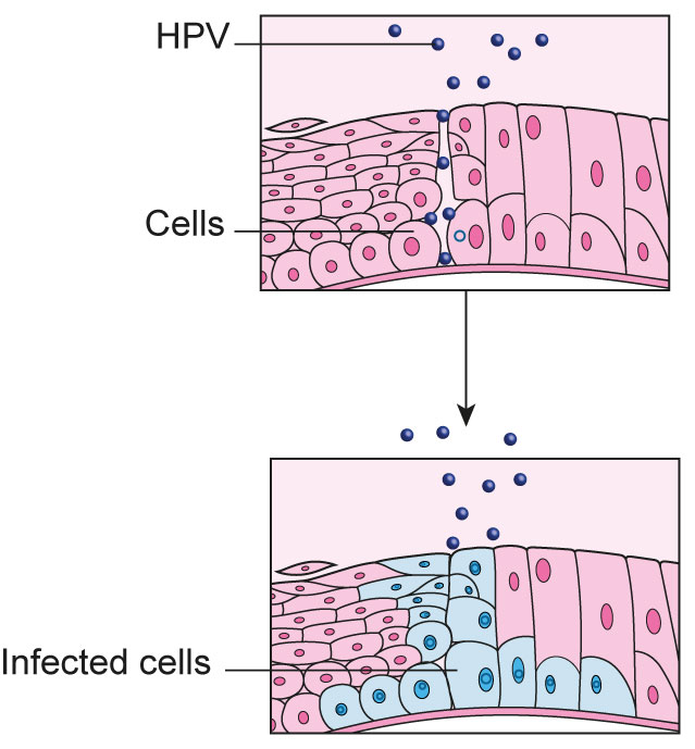 cancer cells on cervix hpv)